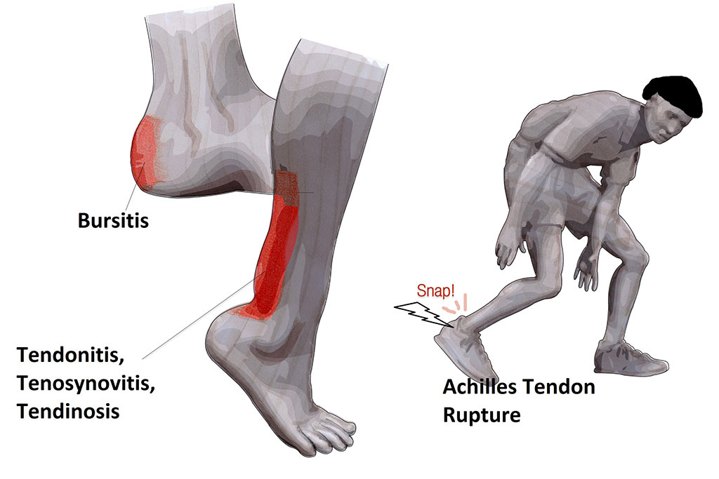 achilles tendon rupture graphic